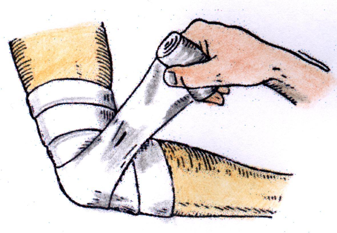 Reguli privind realizarea pansarii in acordarea primului ajutor
